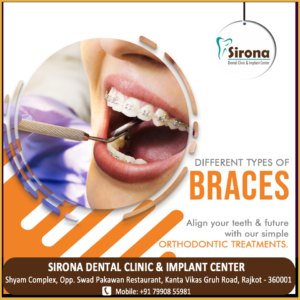 Braces Treatment alignment
